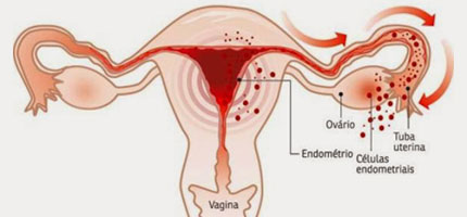 endometriose-ilustra