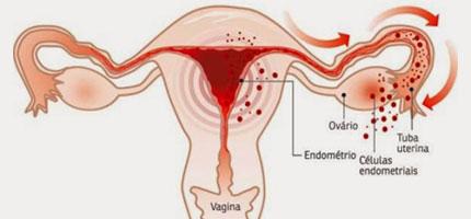 doen, As 9 doenças mais comuns entre as mulheres