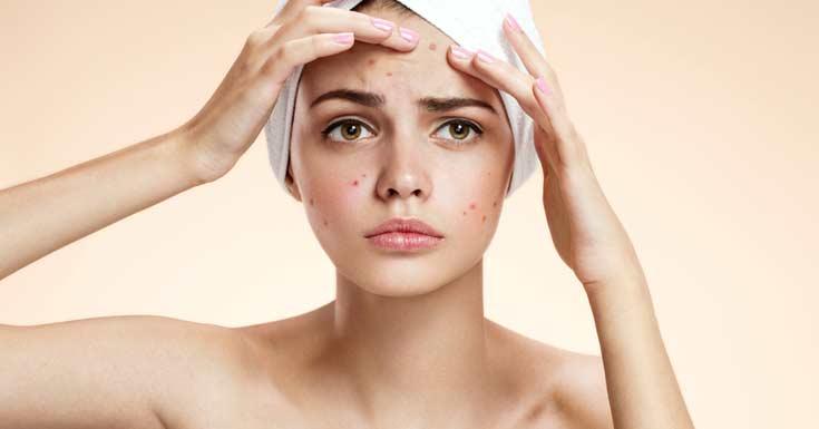 zinc-can-aid-against-acne