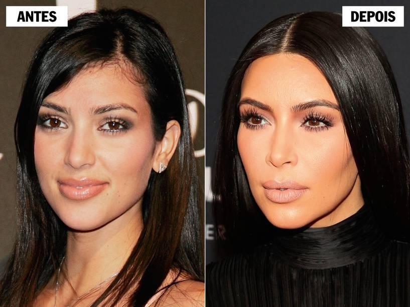 alx_kim-kardashian-antes-depois-alx_original
