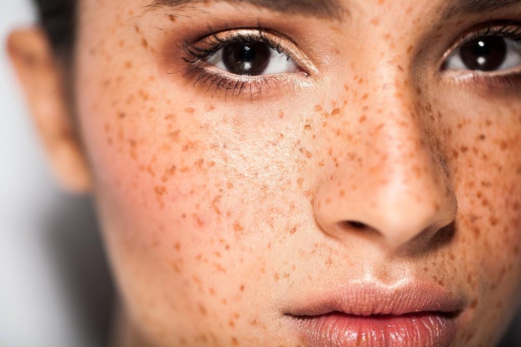 Retirar a pigmentação em uma cara por meio de vitaminas