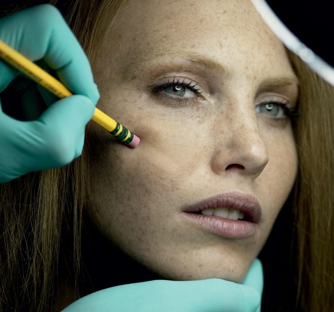 Como retirar uma idade pigmentary notam em uma cara