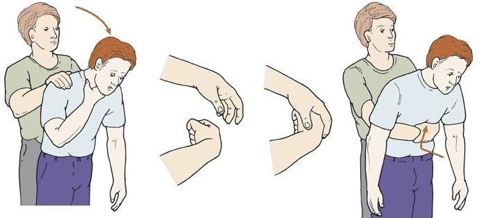 manobra de heimlich