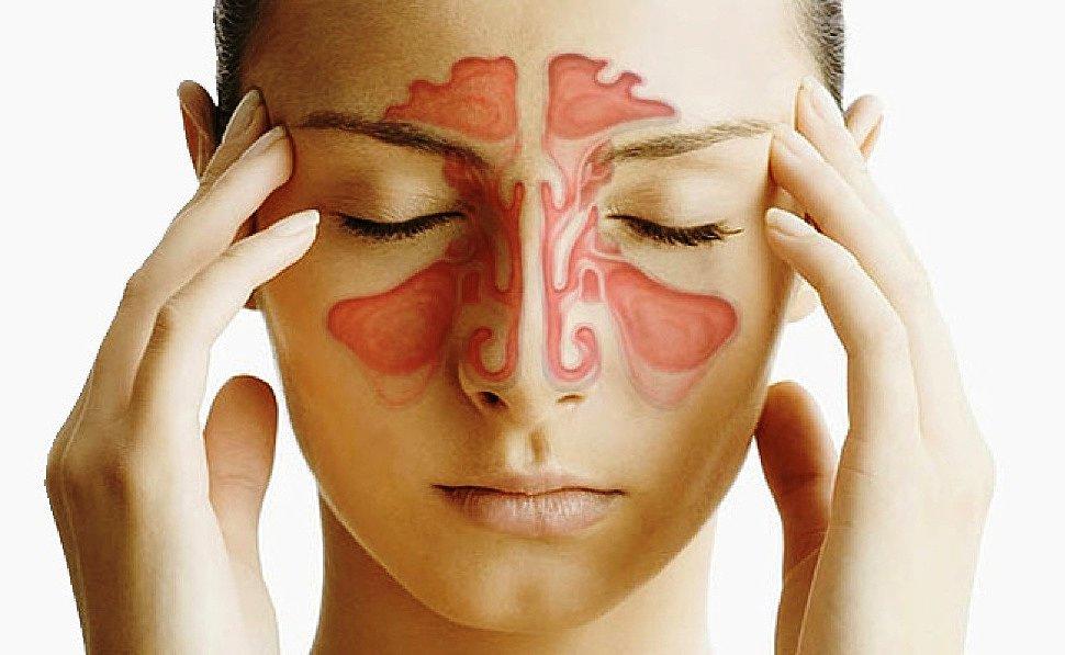 rinit-allergicheskii